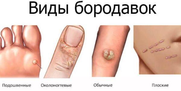 Dermatologie - Venerologie