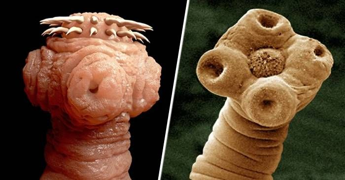 ce viermi sunt la oameni? imagenes de un oxiuros