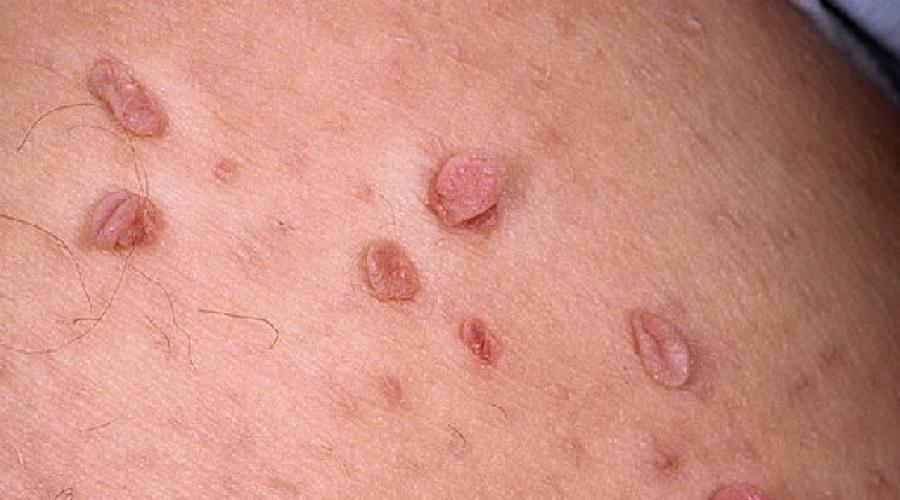 human papillomavirus hpv types