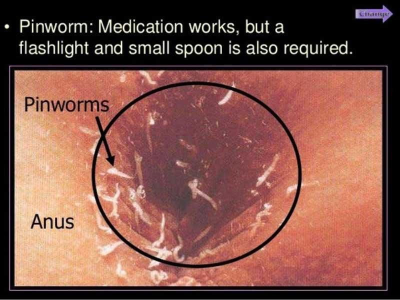 Oxiuroza (Enterobioza) - Oxiuri la femei