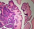 intraductal papilloma libre vaccinul giardia 2020