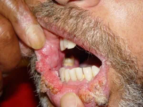 verucile virusului papiloma cancer bucal articulos
