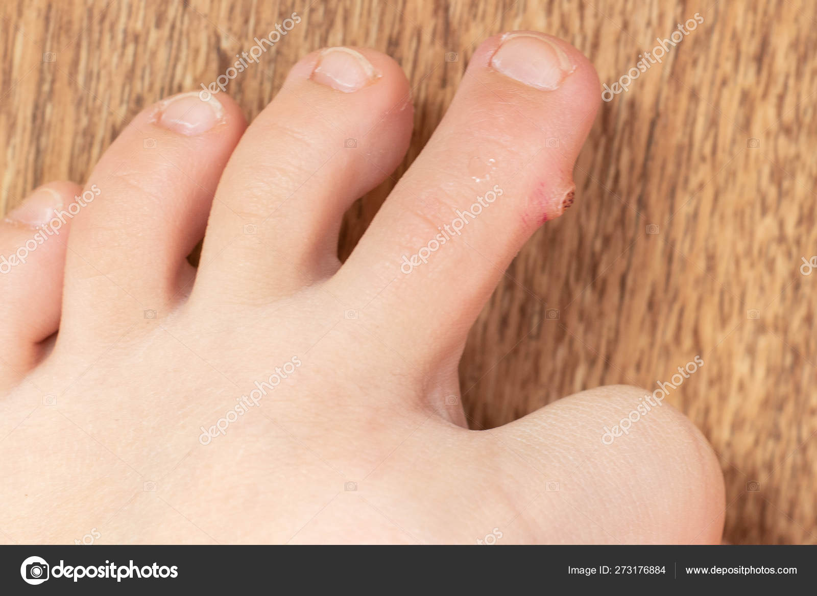 Wart foot cause. Plantar wart on foot symptoms - Anemie regim