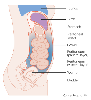 cancer in abdominal lining