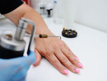 Tratament laser pentru veruci (negi)