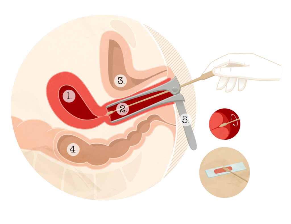 Papillomavirus femme comment l attraper