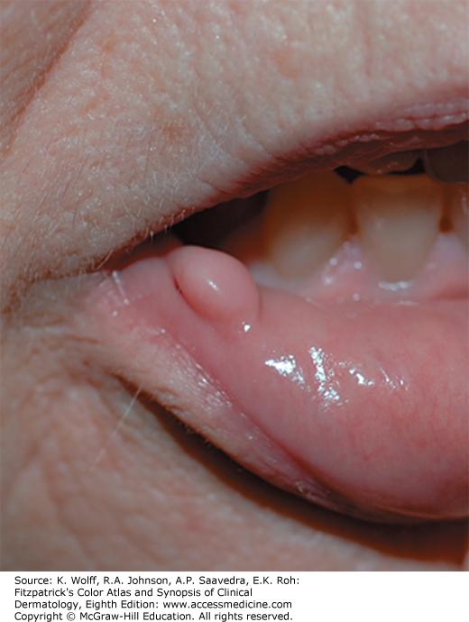 Tongue papilloma icd 10. , Squamous papilloma tongue icd 10