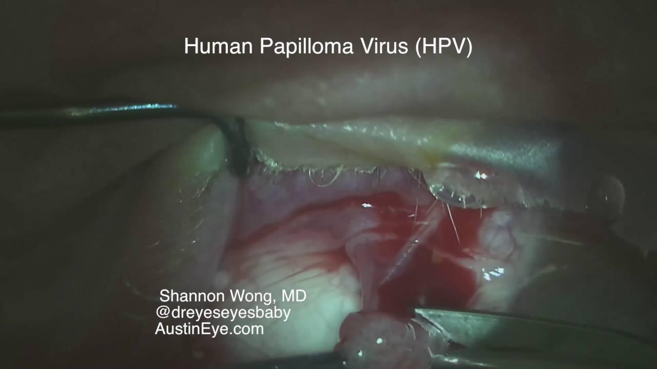 Papilloma virus conjunctival, Papilloma virus conjunctival