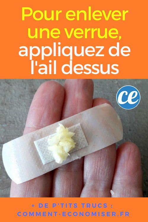 Remede naturel contre papillomavirus