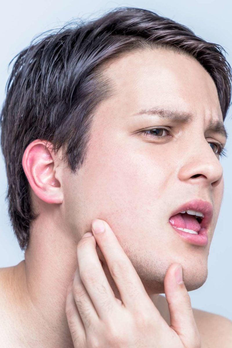 hpv facial warts