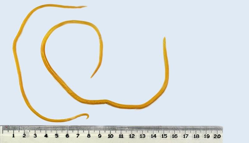 Tratamento de oxiurus - Oxiurus verme tratamento Publicații Populare