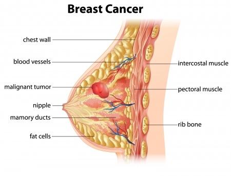 Ce trebuie sa stii despre cancerul la san si cum il poti preveni