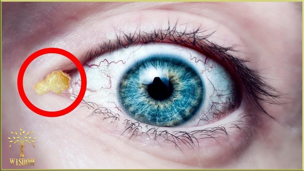 Ochiul uman - Ce viermi sunt în ochiul uman