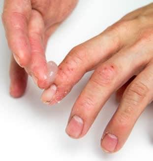 dermatite da contatto giardiaza este
