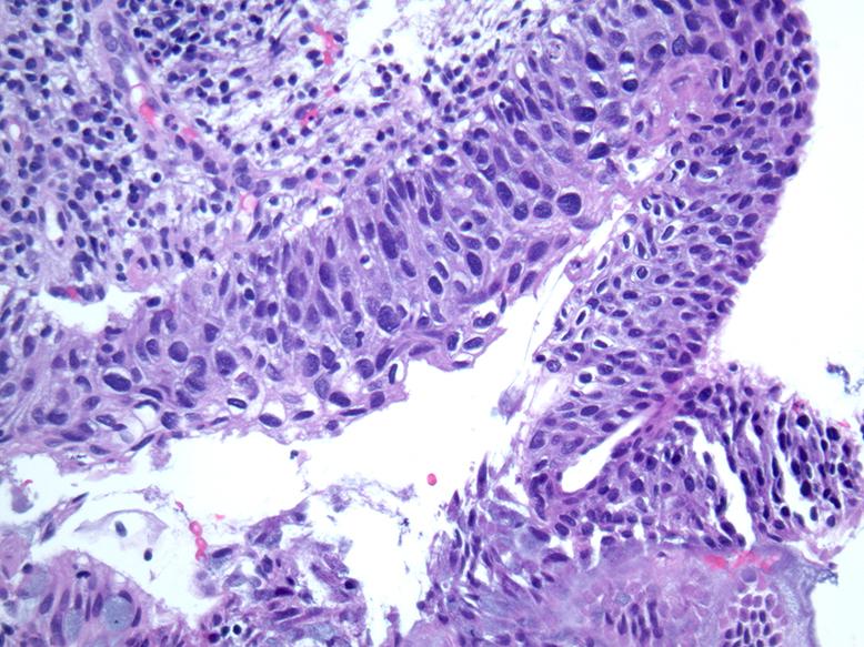 histology papillomavirus cum să scapi de viermi mari