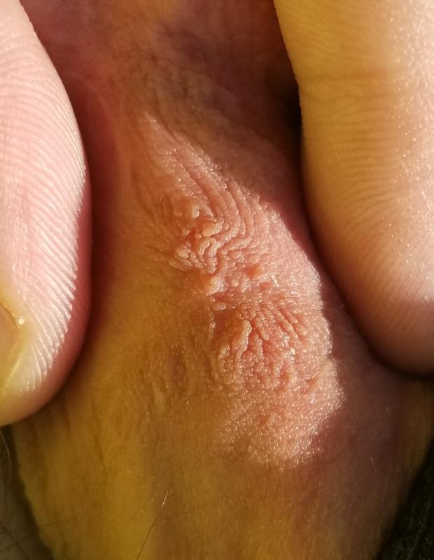 Human papillomavirus affecting genital warts,