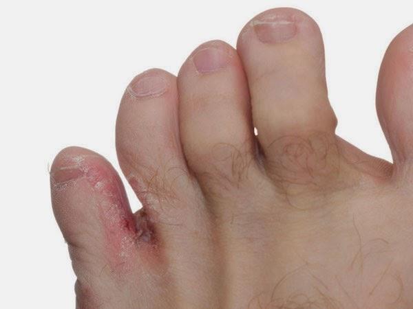 Iritaţia între picioare: care sunt cauzele, cum poate fi tratată şi prevenită
