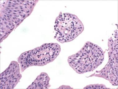 papilloma urothelial histology