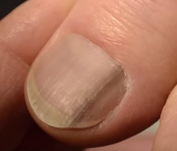 simptome cancer unghie este un medicament parazitar pentru corpul uman