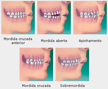 cancer bucal por brackets giardia tratament natural