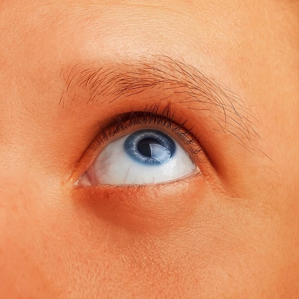 alimente bune pentru cancerul de piele viermi în ochii copilului