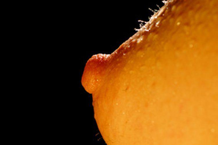 paraziți ai hiperparazitelor intraductal papilloma dcis