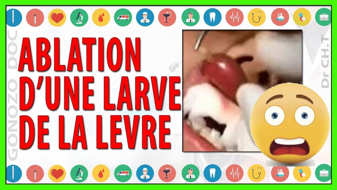 tratamentul artritei parazitare virus del papiloma positivo