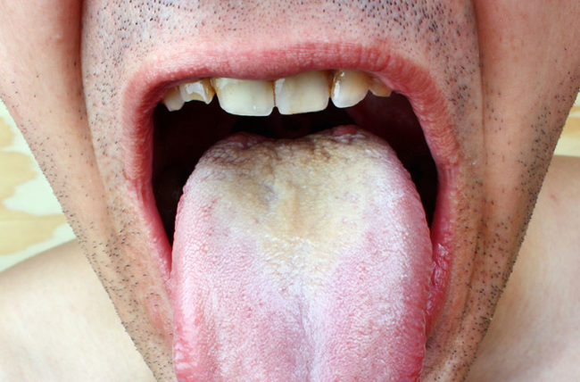 Hpv and cancer of the tongue Hpv and cancer of the tongue - csrb.ro