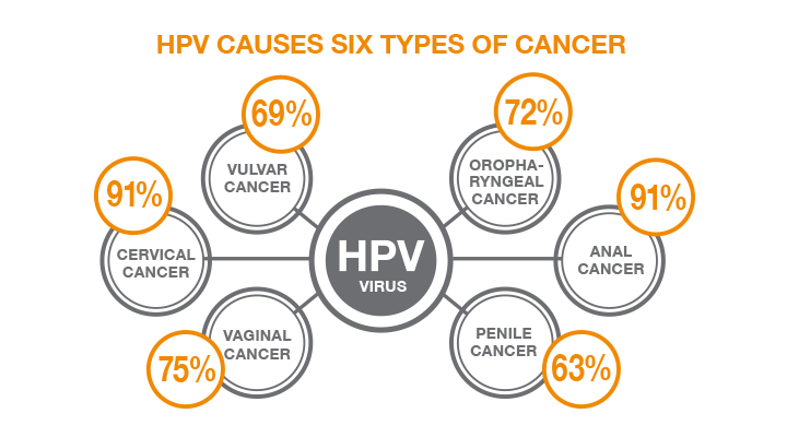 Hpv type penile cancer, Hpv causes penile cancer