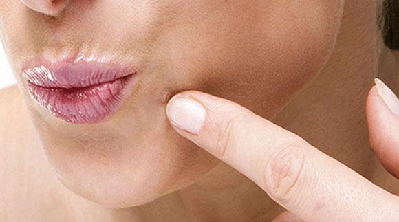 aceste pastile sunt paraziți da li se hpv virus prenosi poljupcem