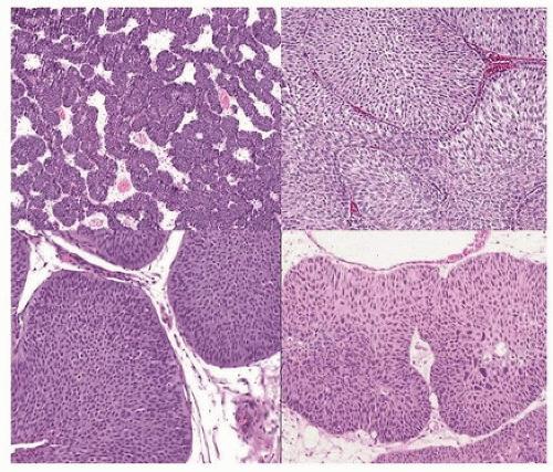 Urothelial papilloma follow up - Inverted papilloma bladder follow up