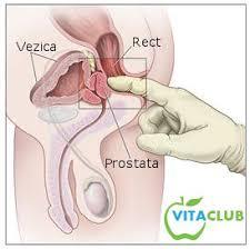 cancer de prostata la tineri instrument pentru curățarea organismului de parazitactact