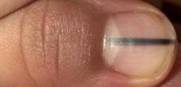 simptome cancer unghie cum să scoți un parazit din ochi