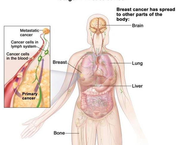 papilomele pe medicamente tratamente corporale recenzii descrierea condilomului la femei