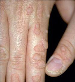 Homme porteur du papillomavirus - Est on porteur a vie du papillomavirus
