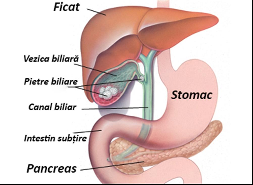 Opisthorhioză și giardiază: semne și simptome de paraziți în veziculul biliar - Dietă -