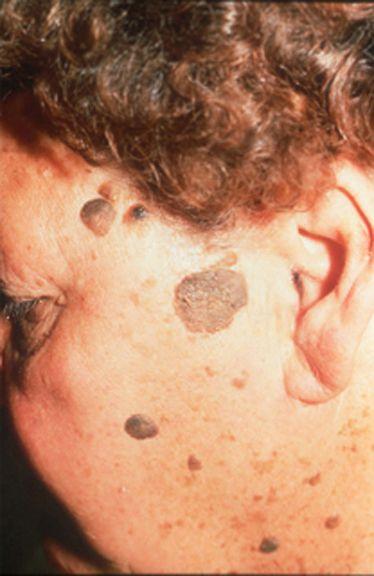 Warts on hands under skin