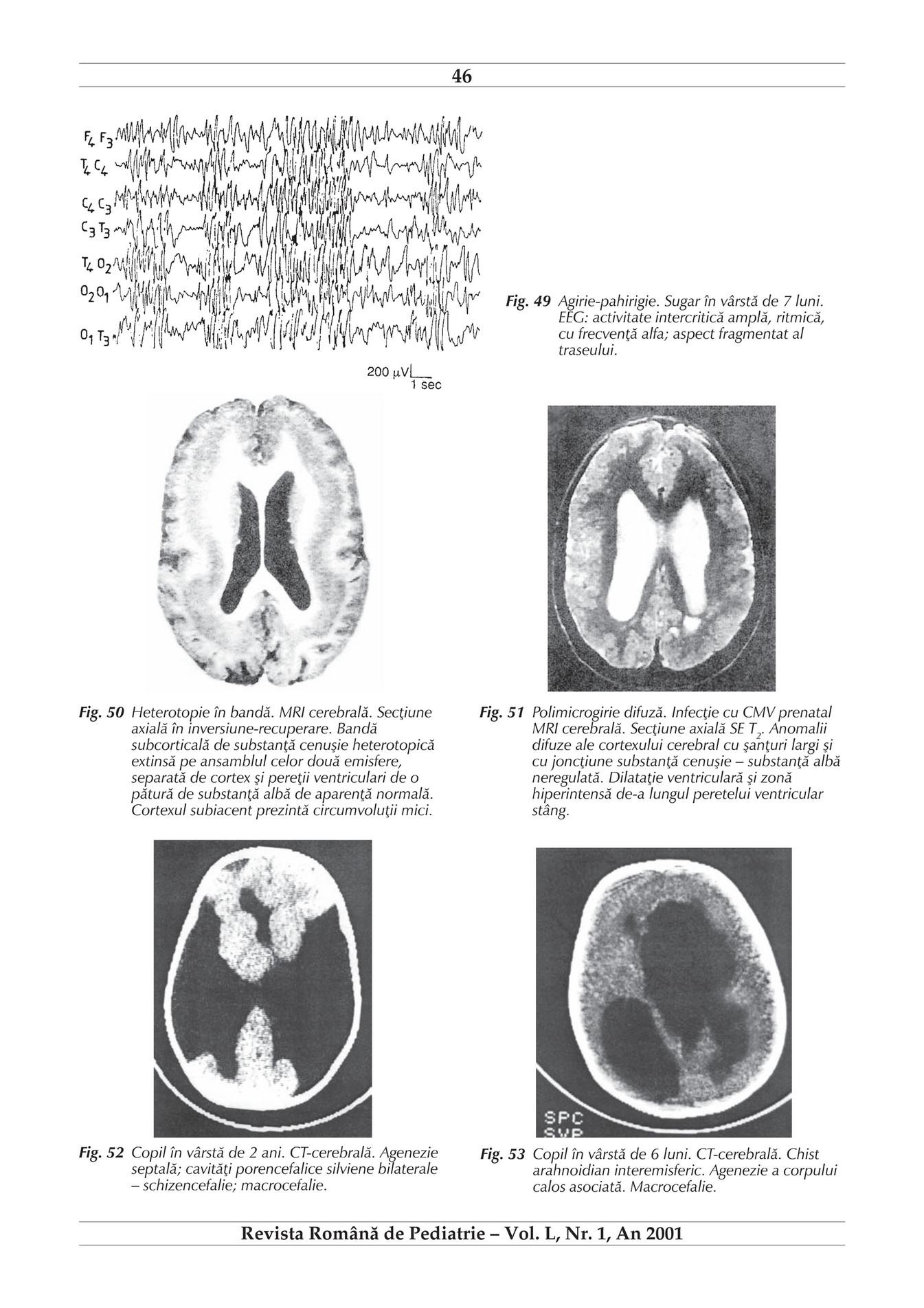 Anatomia, fiziologia si afectiunile corpului uman | veritasvalentin | Pagina 3