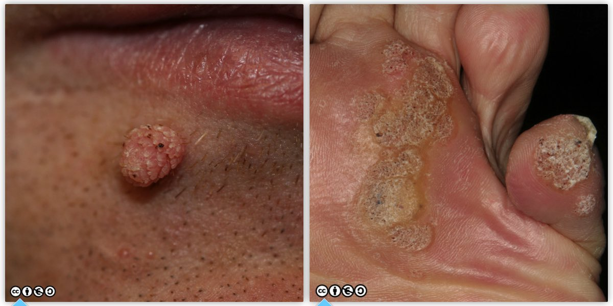 Papilloma virus keratosis, Warts and skin cancer