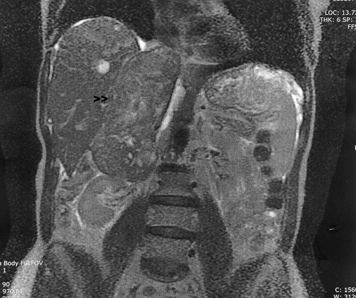 cancer abdominal cie 10