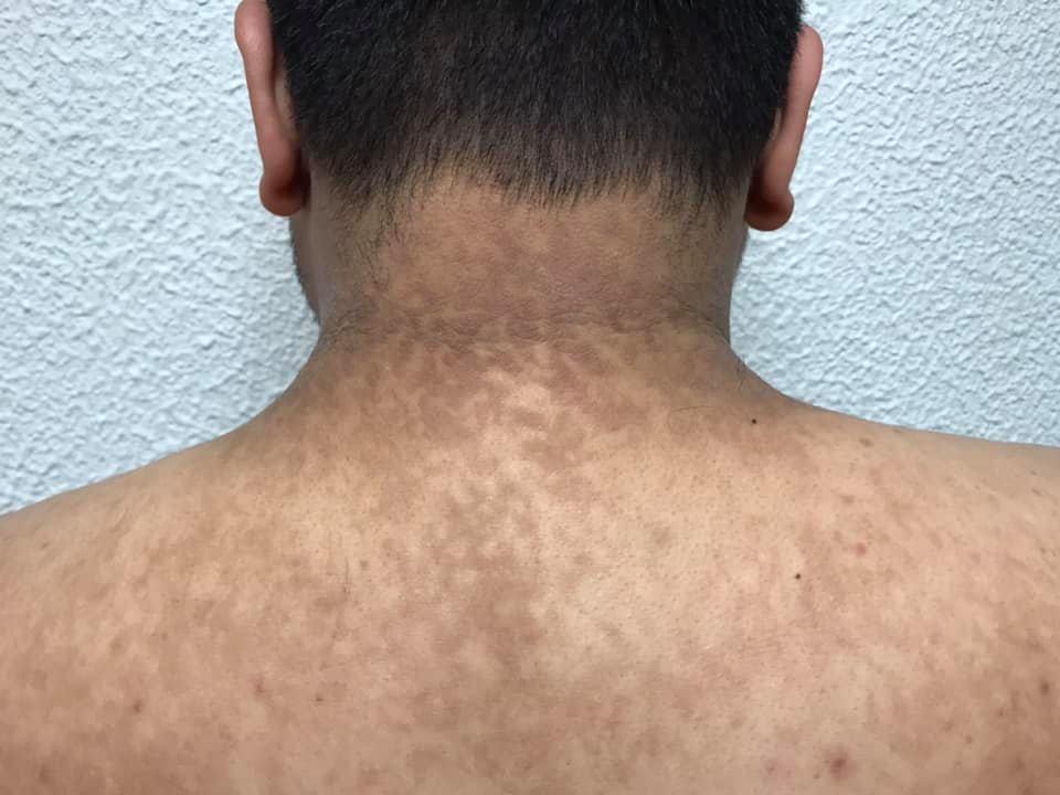 Papilomatosis reticulada y confluente tratamiento Fujifilm finepix t pret