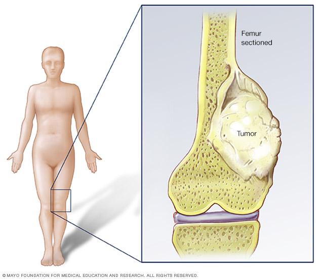 sarcoma cancer pediatric