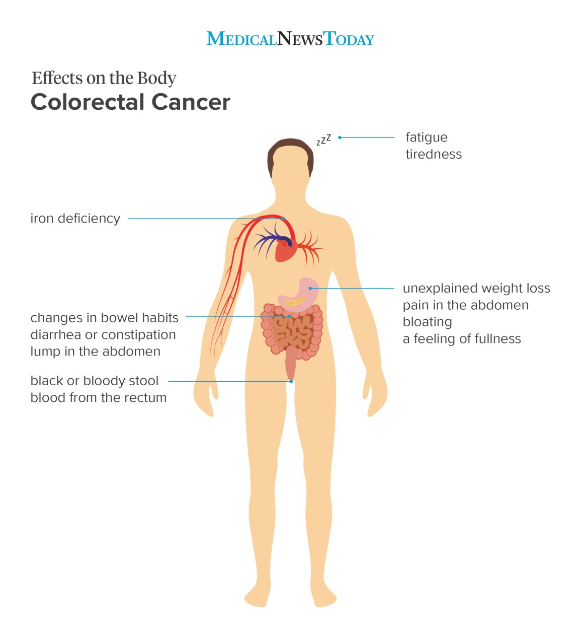 viermii cutanare la om: cauze, simptome și tratamente