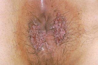 Hpv virus symptoms nhs