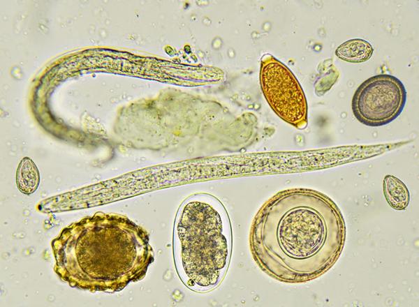 papillomas during pregnancy Granule Fordyce sau condilom