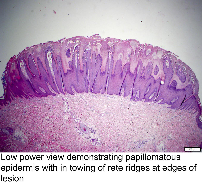 squamous papilloma vs verruca vulgaris