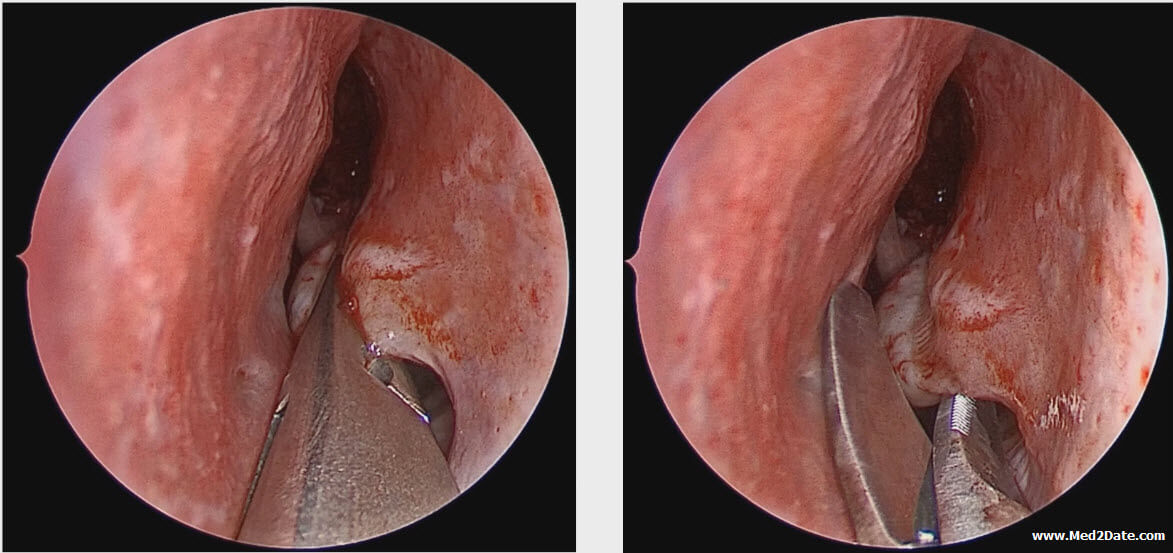 condilom cervical cu surgitron