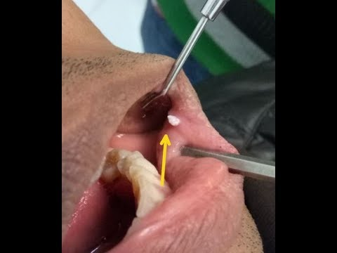 mouth warts cure