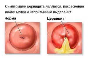 Boli cauzate de infecții cu transmitere sexuală