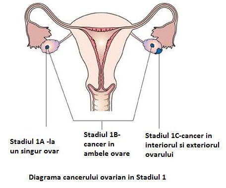 cancer ovarian stadiul 4)